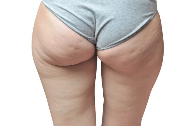 Cellulite Gruende Methoden